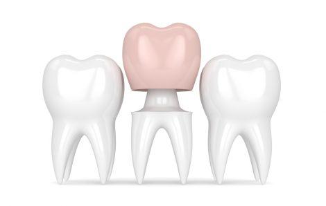 Dental Inlays And Dental Onlays